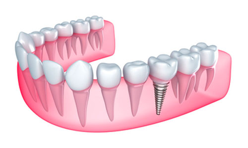 Dental implant restoration options at Sylvan Heights Dental