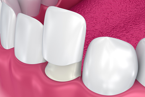 Porcelain Veneers at Sylvan Heights Dental