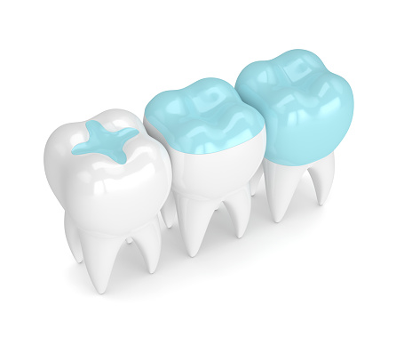 3D model of composite tooth fillings. Learn more about dental fillings from Sylvan Heights Dental in Portland, OR