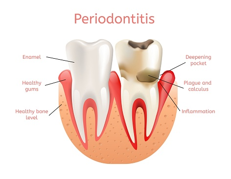 Chart explaining periodontal therapy from Sylvan Heights Dental
