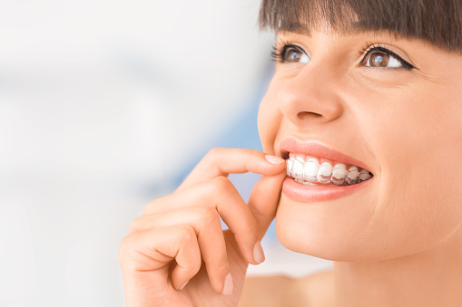 Clear Invisalign aligners at Sylvan Heights Dental in Portland, OR