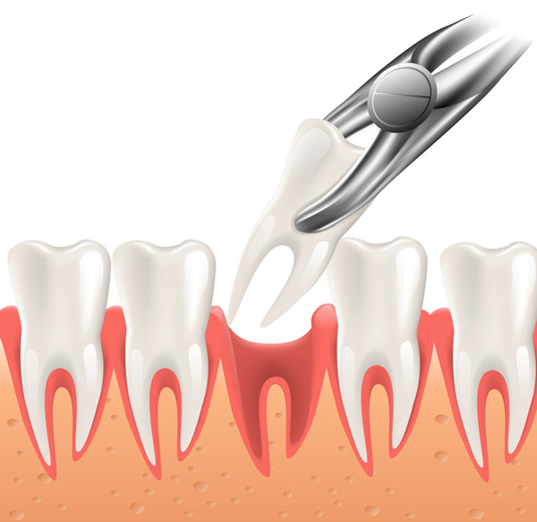 Diagram of a single tooth extraction