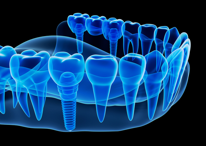Why Dental Implants Allow You to Look Younger